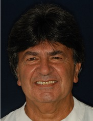 Othon Papadopoulos, MD