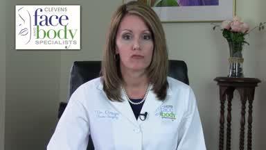 Amy Simon, MD, FACS | American Society of Plastic Surgeons